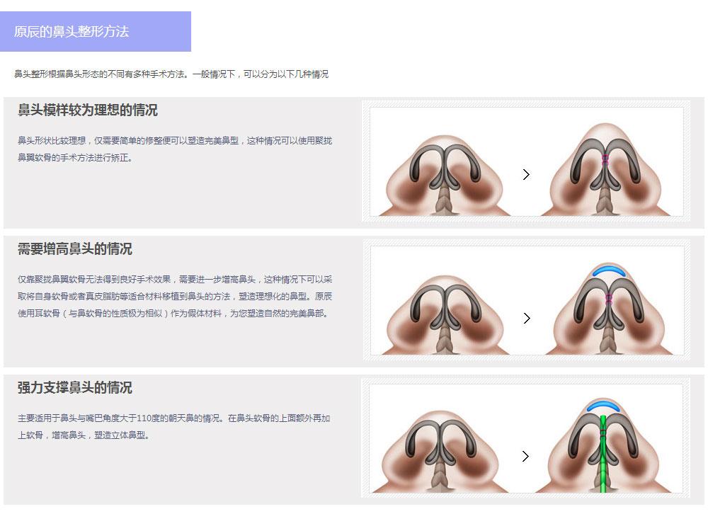 韩国原辰鼻形矫正