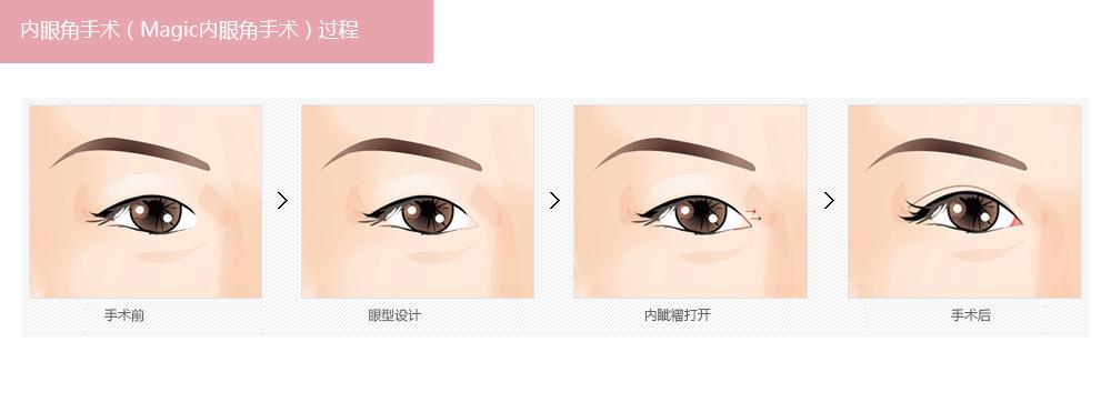 开内眼角手术有几种