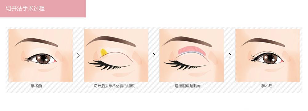 韩式切开法双眼皮价格