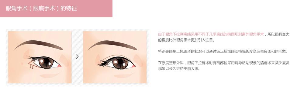 韩式开外眼角手术需要多少钱