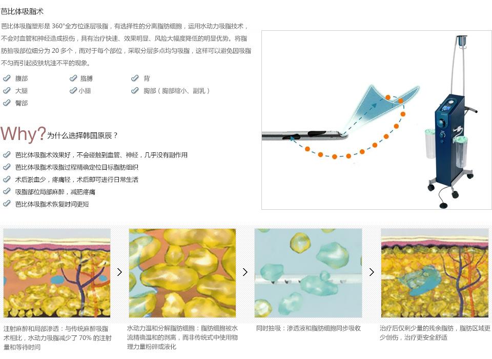 韩式吸脂减肥价格一览表