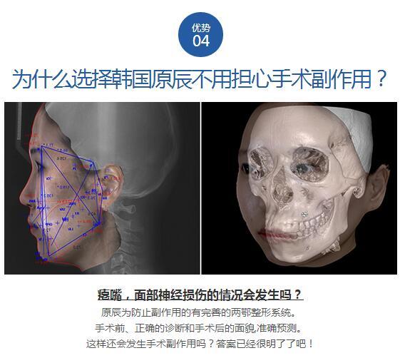 原辰两鄂整形手术优势之四