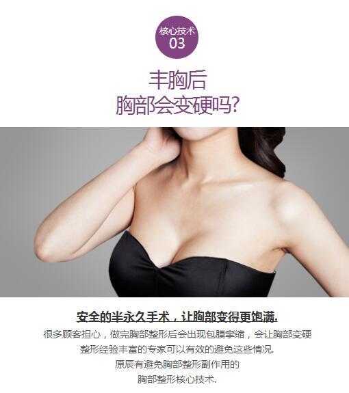 胸部整形外科优势