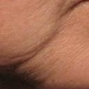 改善皱纹、皮肤松弛
