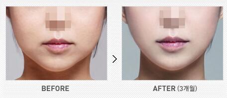 V脸下颌角手术