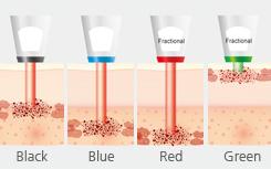 4种不同长度的探针破坏不同深度的色素细胞