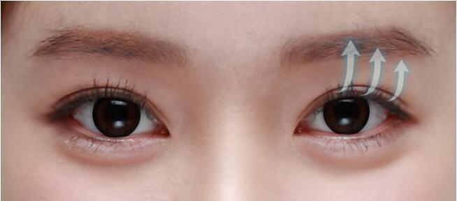原辰整形双眼皮手术优势