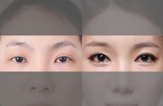 韩国原辰双眼皮方案