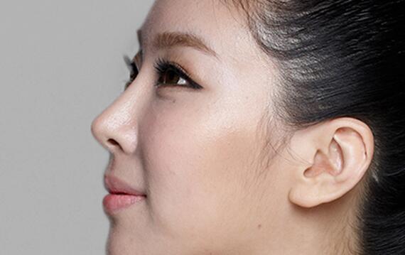 鼻部整形线条
