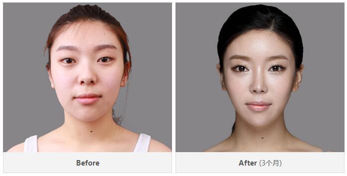 鼻部整形前后对比