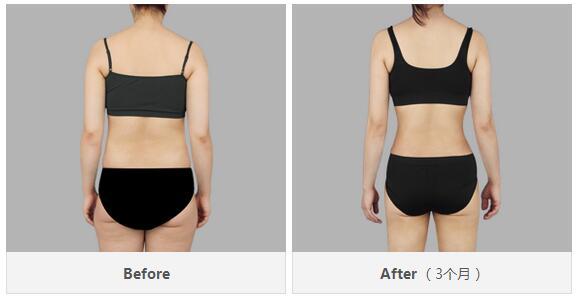 吸脂背面前后效果对比图