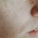 改善色斑、雀斑等色素性皮肤