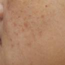 改善暗沉皮肤的肤色