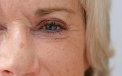 同时改善疤痕、皱纹、痤疮以及收缩毛孔
