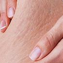 治疗妊娠纹