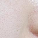 收缩粗大的毛孔